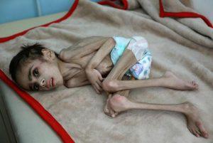 یمن میں رواں سال لاکھوں بچوں کے بھوک سے مرنے کا خدشہ